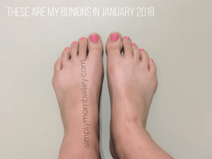 Bunionettes (Tailors Bunions) January 2018
